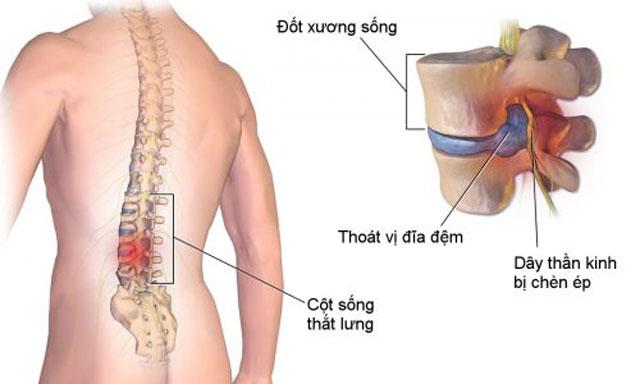Có nhiều nguyên nhân khác dẫn đến đau cột sống