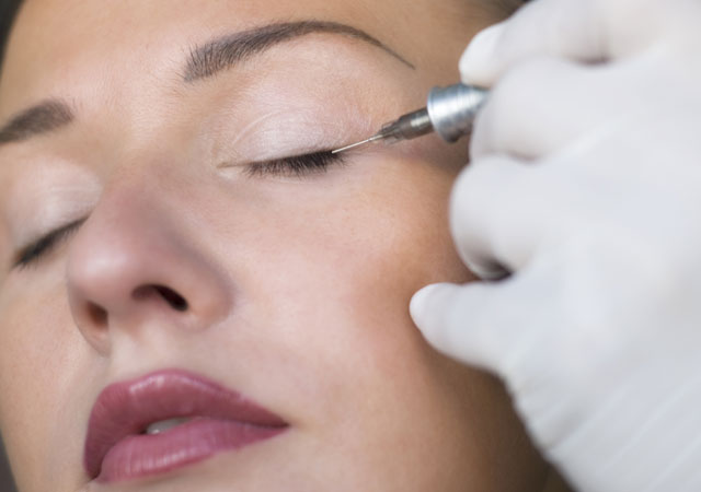 Quy trình thực hiện chuẩn, giúp bạn có được mí mắt đẹp và an toàn.